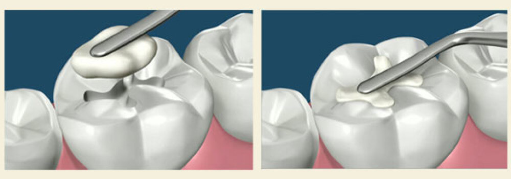 dental fillings NJ